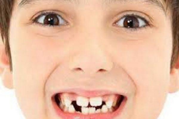 Kenali Penyebab Gigi Anak Berantakan Dan Maju Ke Depan
