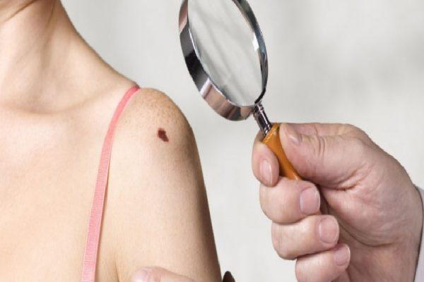 Tanda Tahi Lalat Ciri Kanker Yang Perlu Anda Waspadai